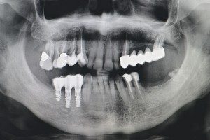 Implantes en Estella. Clinica dental Tellechea